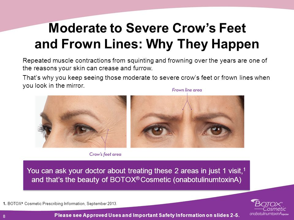 8 8 8 Moderate to Severe Crow's Feet and Frown Lines: Why They Happen Repeated muscle contractions from squinting and frowning over the years are one of the reasons your skin can crease and furrow.