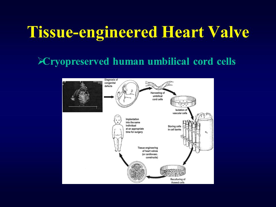 Tissue-engineered Heart Valve  Cryopreserved human umbilical cord cells