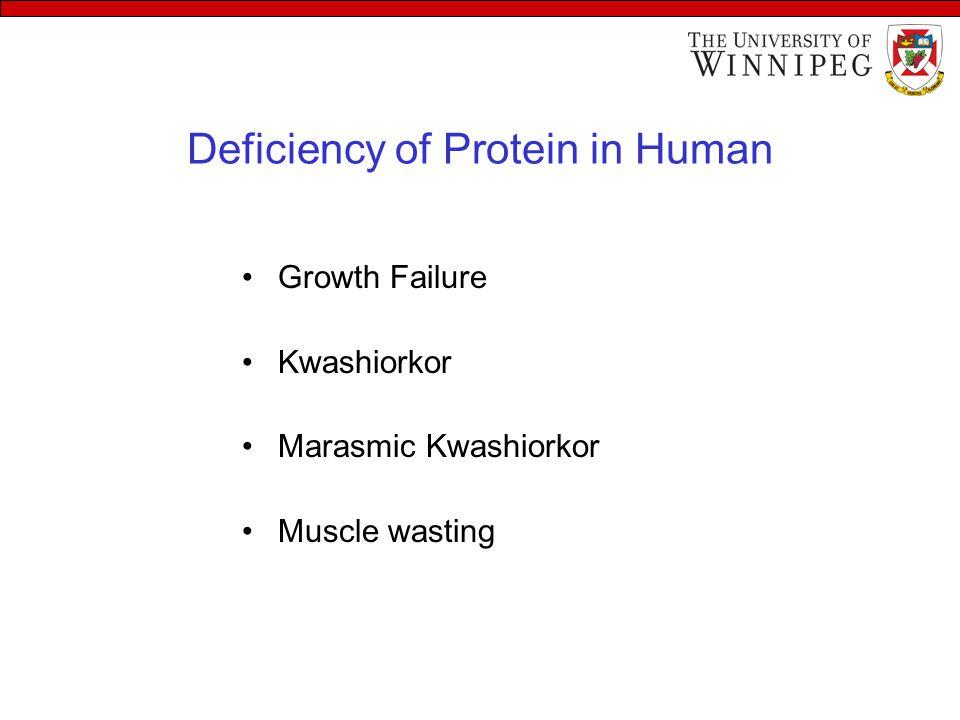 Deficiency of Protein in Human Growth Failure Kwashiorkor Marasmic Kwashiorkor Muscle wasting