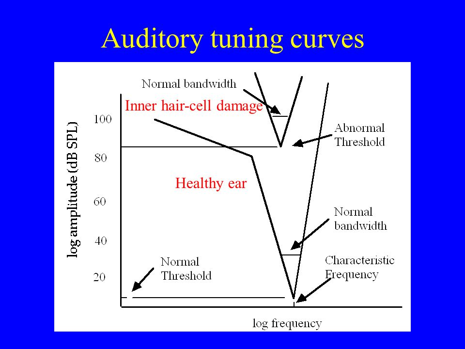 Psychophysical tuning curves Bandwidth