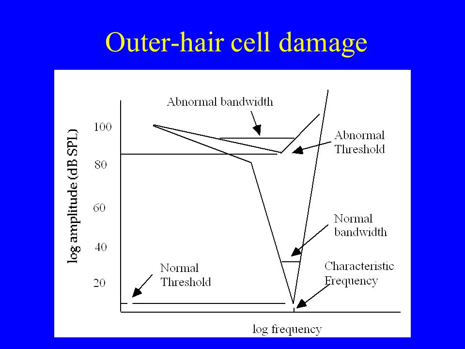 Auditory tuning curves Healthy ear Inner hair-cell damage