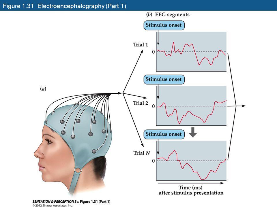 Figure 1.31 Electroencephalography (Part 1)