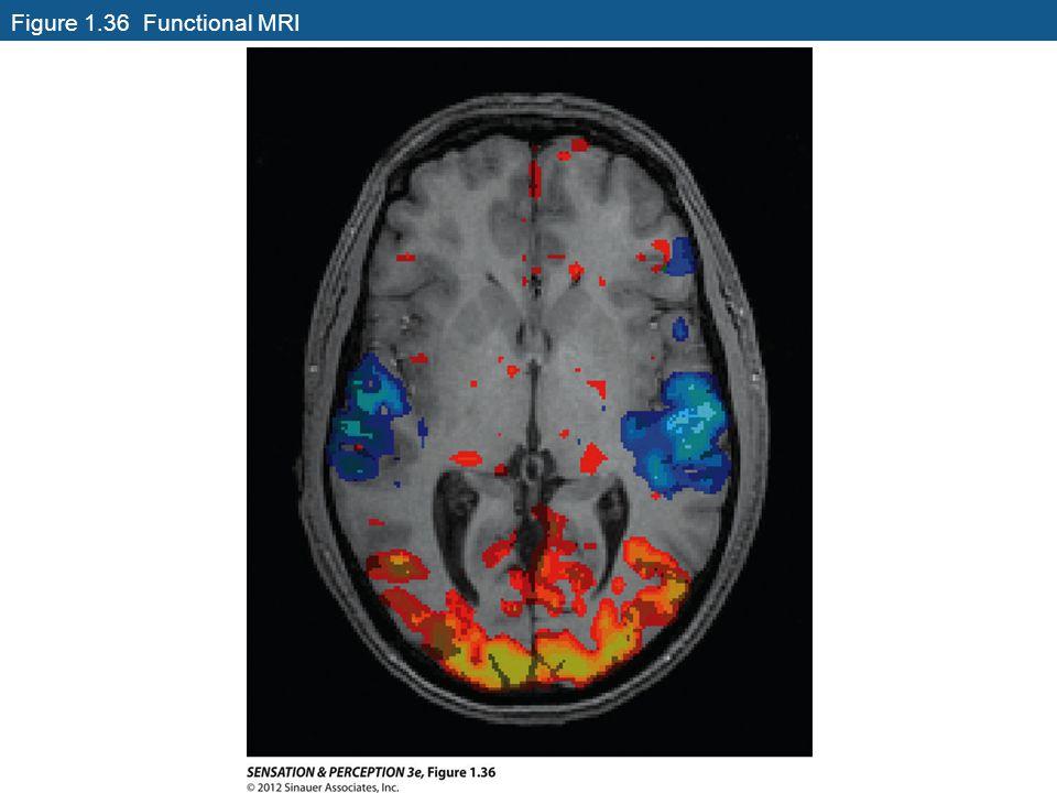 Figure 1.36 Functional MRI
