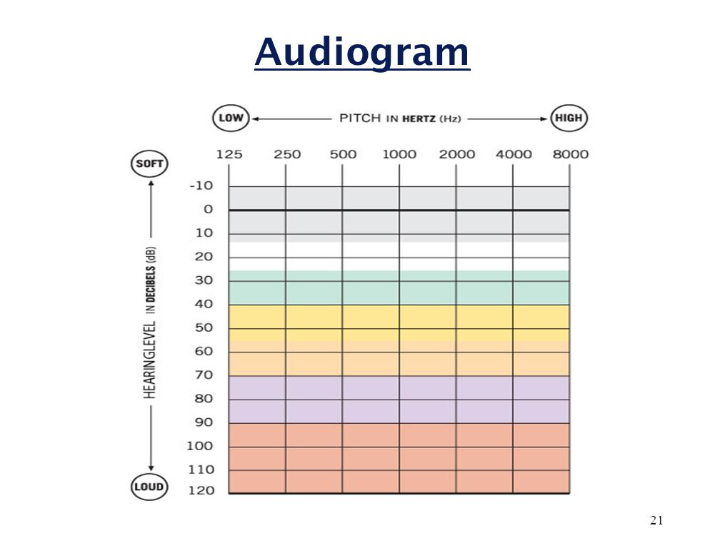 Hearing Level (HL)  Reference level based on young adults with healthy ears  Our ears do not respond equally at all frequencies 0 dB HL ≠ 0 dB SPL varies by frequency  Audiogram is flipped so 0 dBHL is on top Yellow line = 0 dB HL 20