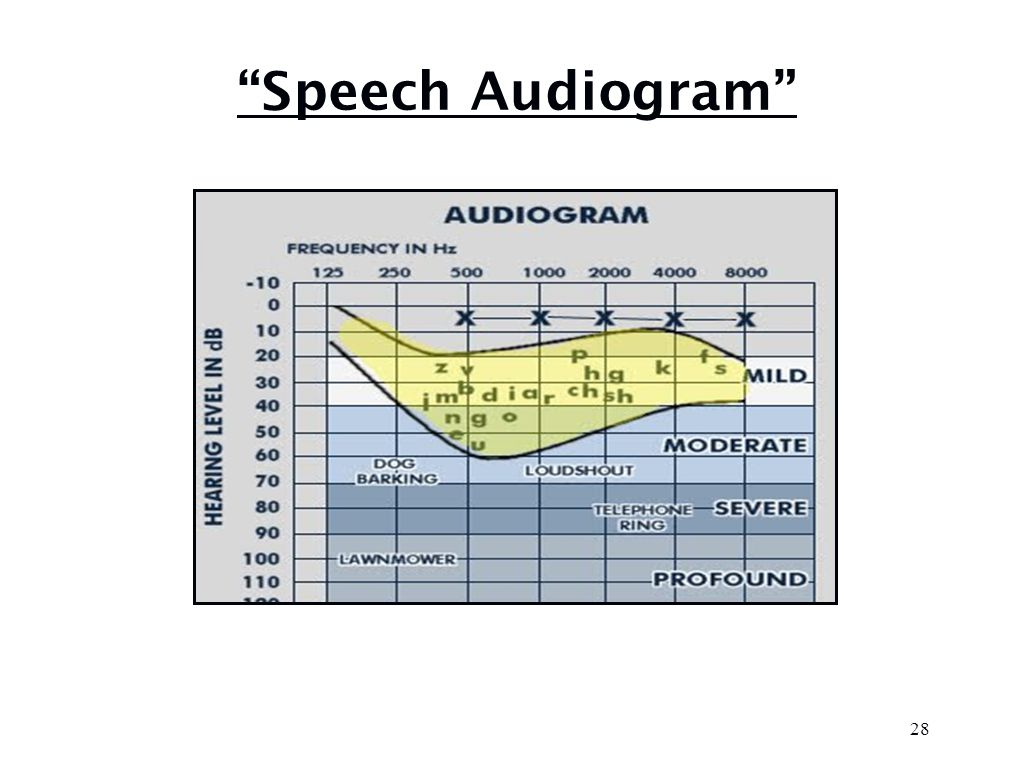 Physics of Speech Human speech is made of very complex sounds that rapidly occur in patterns that are meaningful to specific populations VOWELSLouder High energy Low frequency 80% of power of speech CONSONANTSSofter Low energy High frequency 80% of understanding of speech 27