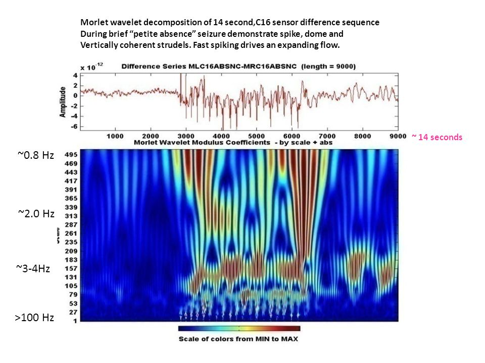 Morlet wavelet decomposition of 14 second,C16 sensor difference sequence During brief petite absence seizure demonstrate spike, dome and Vertically coherent strudels.