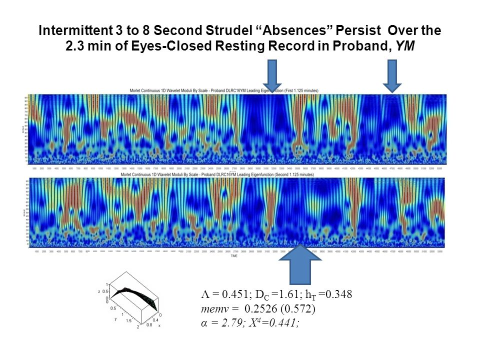 Intermittent 3 to 8 Second Strudel Absences Persist Over the 2.3 min of Eyes-Closed Resting Record in Proband, YM Λ = 0.451; D C =1.61; h T =0.348 memv = 0.2526 (0.572) α = 2.79; X 4 =0.441;