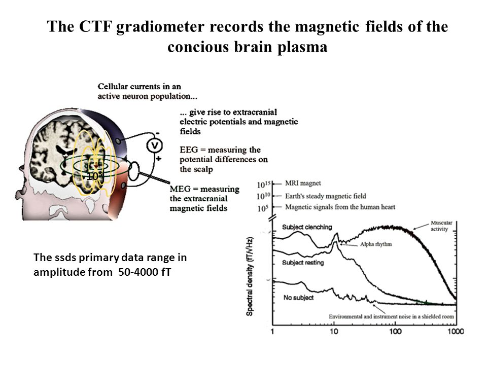 The CTF gradiometer records the magnetic fields of the concious brain plasma The ssds primary data range in amplitude from 50-4000 fT 10 3