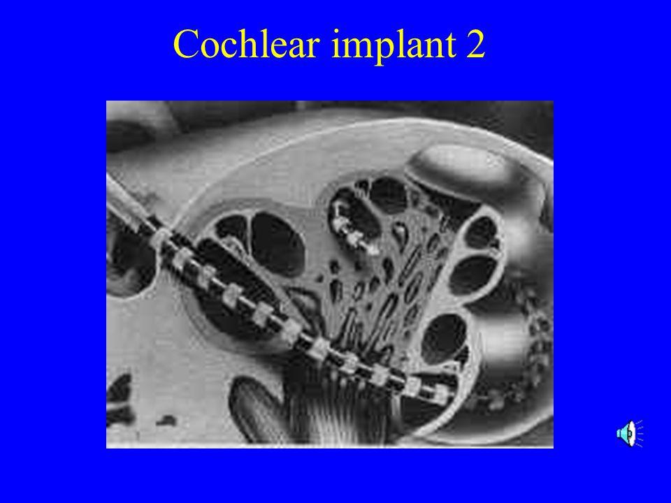 Cochlear Implant 1. Mic. 2.Lead 3. speech processor.