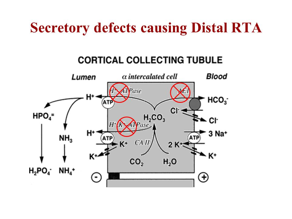 Secretory defects causing Distal RTA