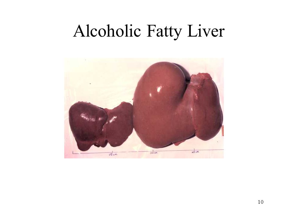 10 Alcoholic Fatty Liver