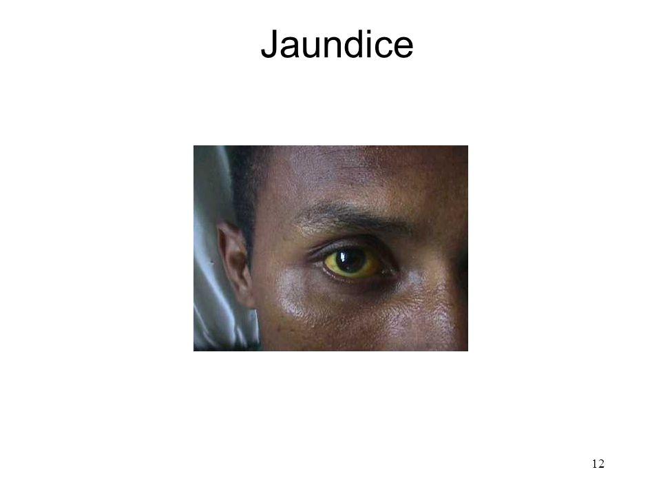 12 Jaundice