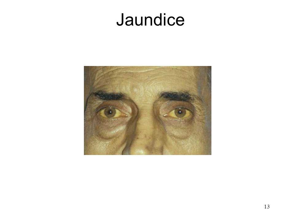 13 Jaundice