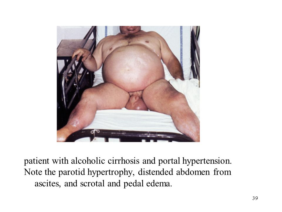 39 patient with alcoholic cirrhosis and portal hypertension.