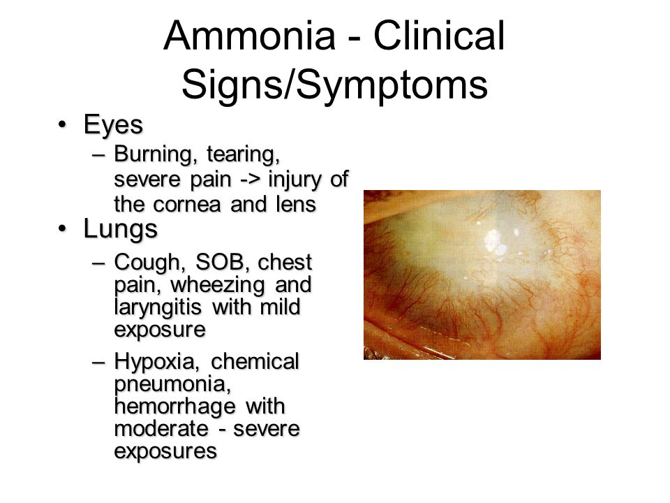 Ammonia - Clinical Signs/Symptoms EyesEyes –Burning, tearing, severe pain -> injury of the cornea and lens LungsLungs –Cough, SOB, chest pain, wheezin