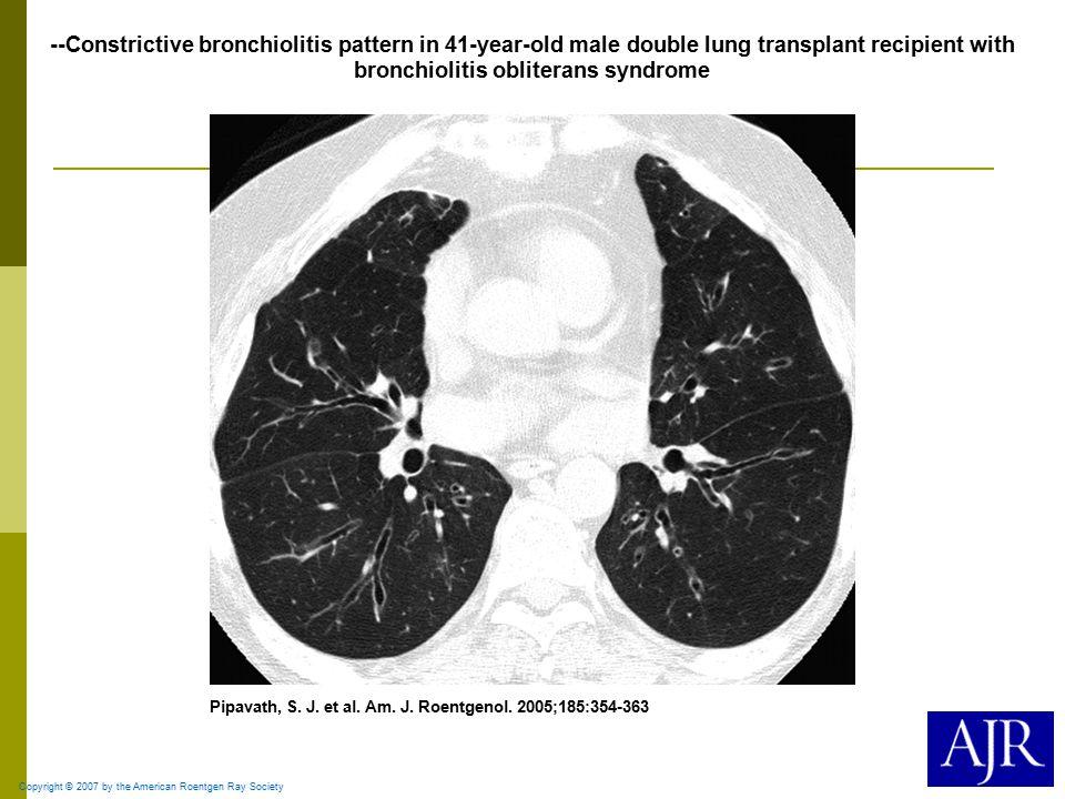 Copyright © 2007 by the American Roentgen Ray Society Pipavath, S. J. et al. Am. J. Roentgenol. 2005;185:354-363 --Constrictive bronchiolitis pattern