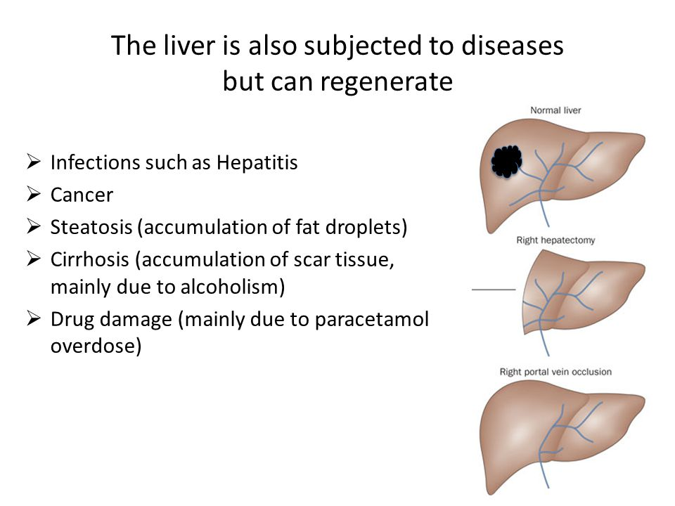 The liver is also subjected to diseases but can regenerate  Infections such as Hepatitis  Cancer  Steatosis (accumulation of fat droplets)  Cirrhosis (accumulation of scar tissue, mainly due to alcoholism)  Drug damage (mainly due to paracetamol overdose)