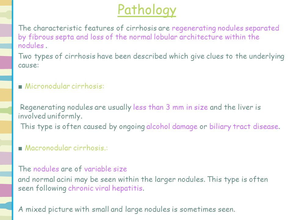 Pathology The characteristic features of cirrhosis are regenerating nodules separated by fibrous septa and loss of the normal lobular architecture wit