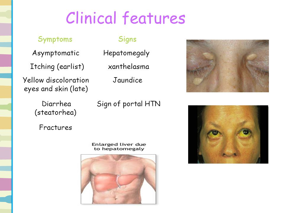 Clinical features SignsSymptoms HepatomegalyAsymptomatic xanthelasma Itching (earlist) JaundiceYellow discoloration eyes and skin (late) Sign of porta