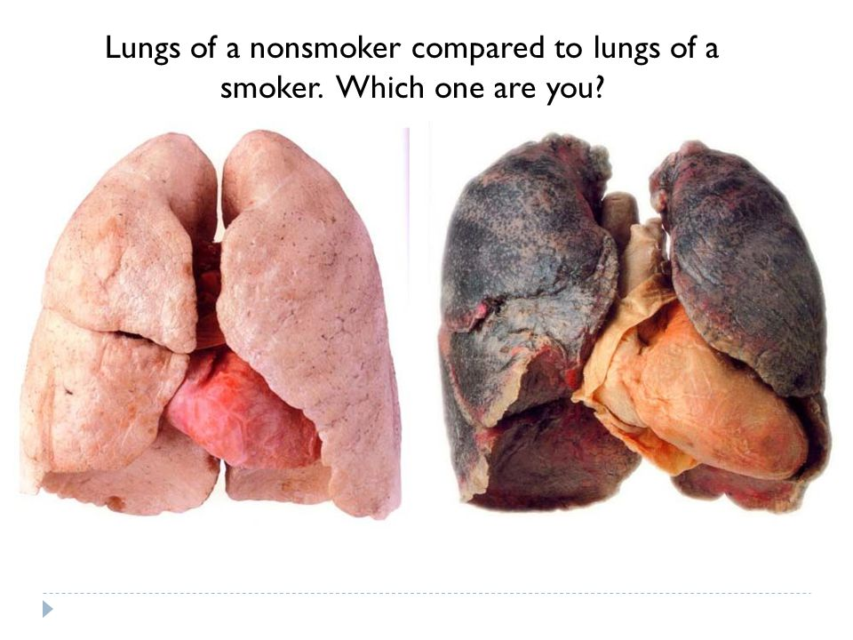Lungs of a nonsmoker compared to lungs of a smoker. Which one are you?