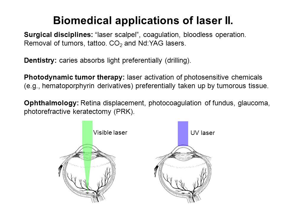 Biomedical applications of laser II.