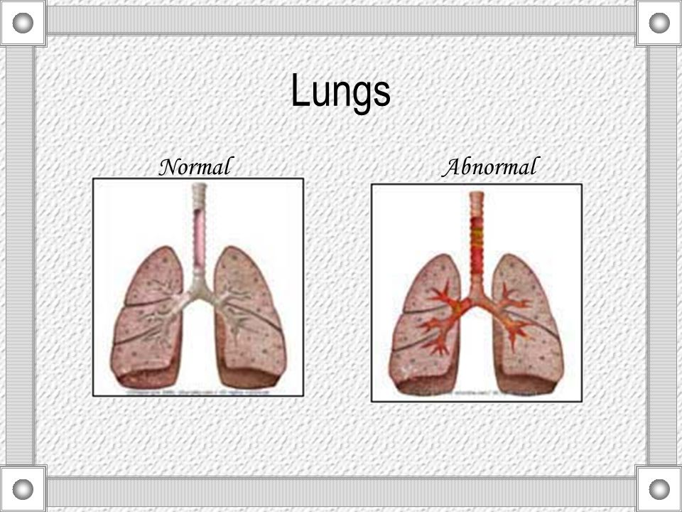 Symptoms For either acute bronchitis or chronic bronchitis, signs and symptoms may include: Cough Production of mucus (sputum), either clear or white or yellowish-gray or green in color Shortness of breath, made worse by mild exertion Wheezing Fatigue Slight fever and chills Chest discomfort