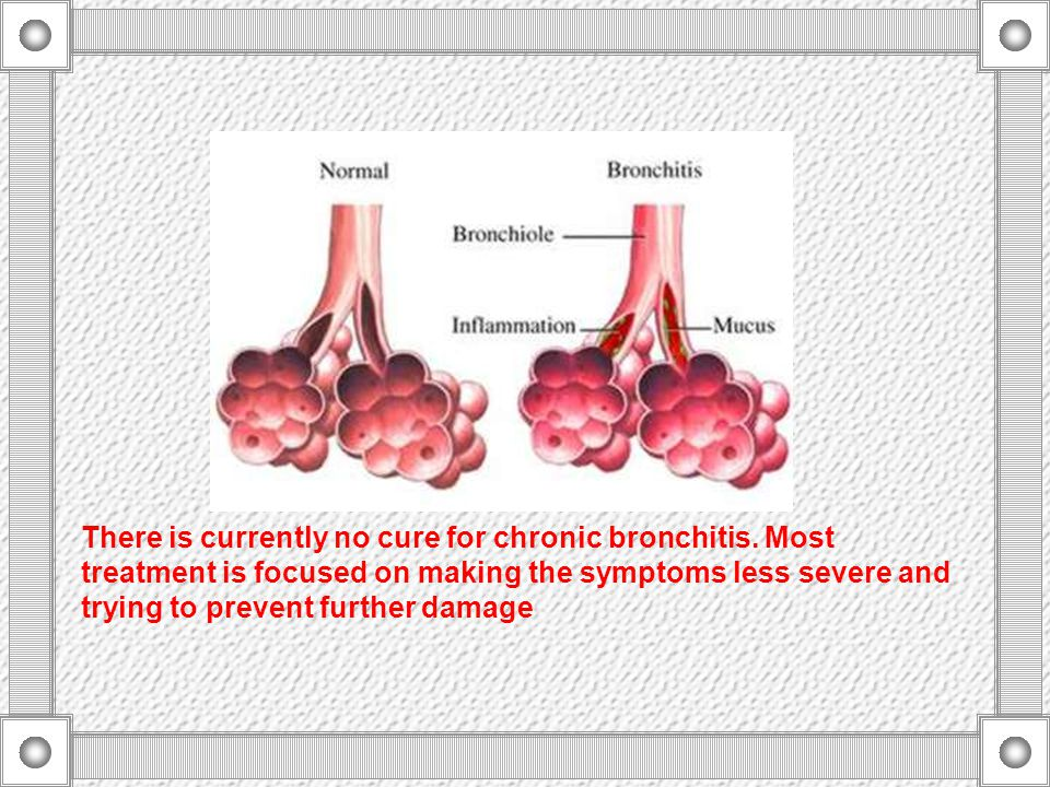 What Is Bronchitis.