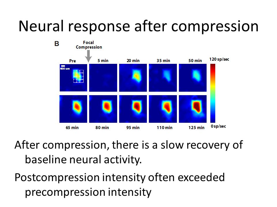 Neural response after compression After compression, there is a slow recovery of baseline neural activity.