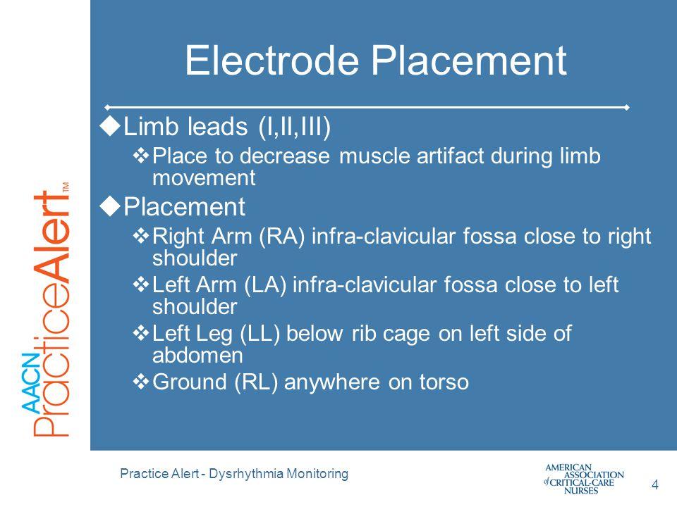 Practice Alert - Dysrhythmia Monitoring 15 QRS Morphology From Philips Cardiac Monitoring Pocket Card 2002
