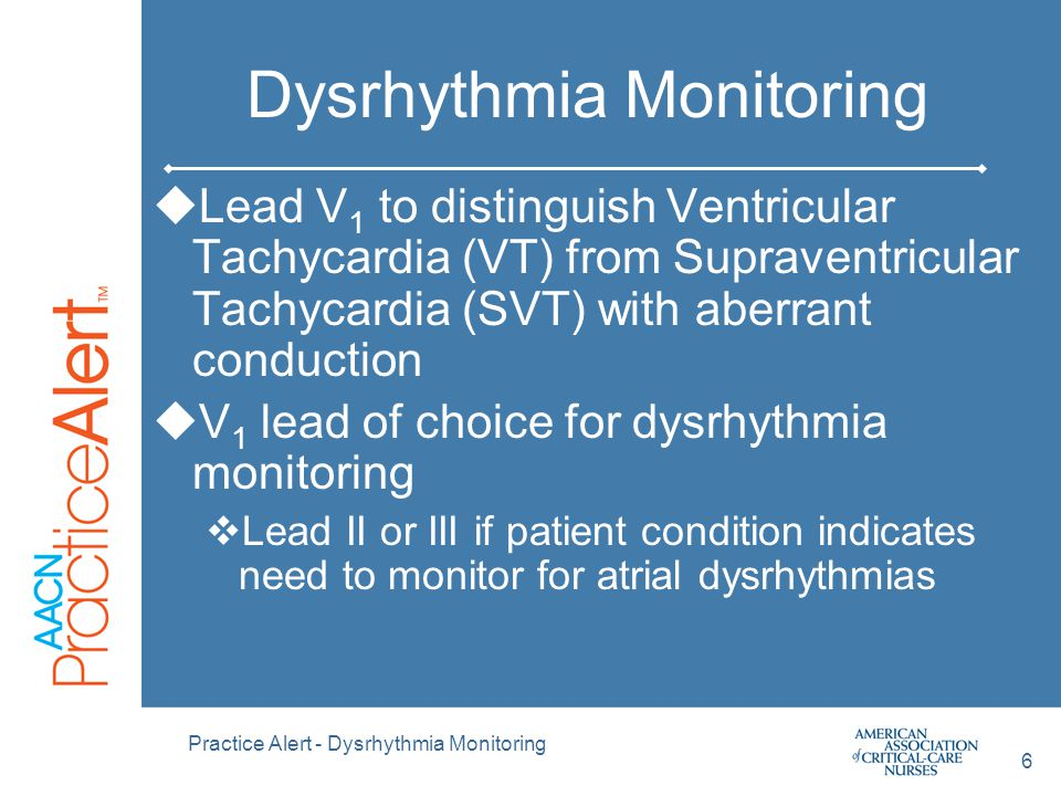 Practice Alert - Dysrhythmia Monitoring 7 Dysrhythmia Monitoring Lead Placement  V 1 (5 lead system)  4 th intercostal space (ICS) to the right of the sternum  MCL 1 (3 lead system)  4 th intercostal space (ICS) to the right of the sternum