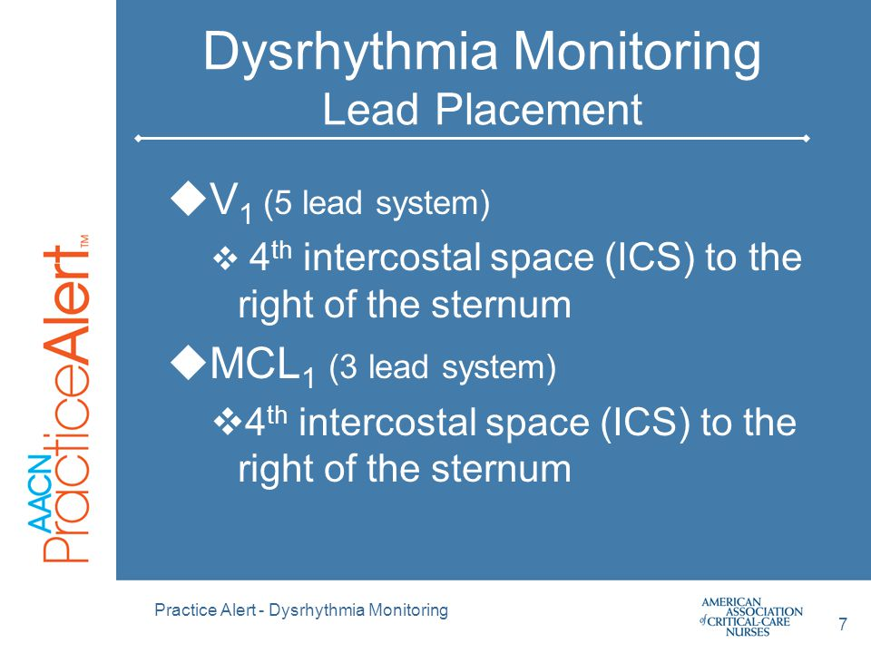 Practice Alert - Dysrhythmia Monitoring 8 3 Lead Electrode Placement  Simple 3- electrode lead system  Electrode placement for MCL 1  Only 1 lead can be monitored with a 3 lead system From Philips Cardiac Monitoring Pocket Card 2002