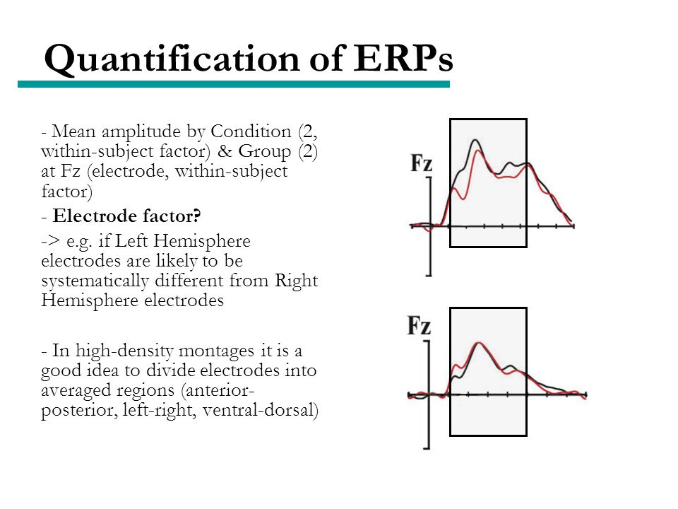 Quantification of ERPs - Mean amplitude by Condition (2, within-subject factor) & Group (2) at Fz (electrode, within-subject factor) - Electrode factor.