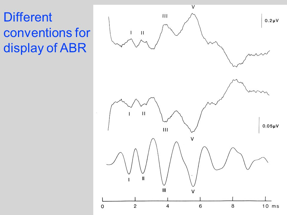 Different conventions for display of ABR