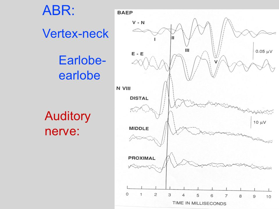 ABR: Vertex-neck Earlobe- earlobe Auditory nerve: