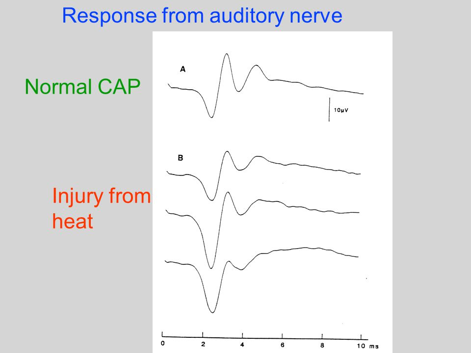 Normal CAP Injury from heat Response from auditory nerve