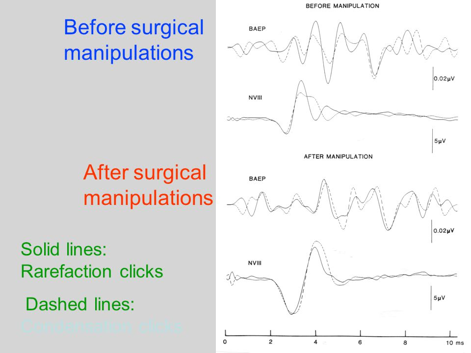Before surgical manipulations Solid lines: Rarefaction clicks Dashed lines: Condensation clicks After surgical manipulations