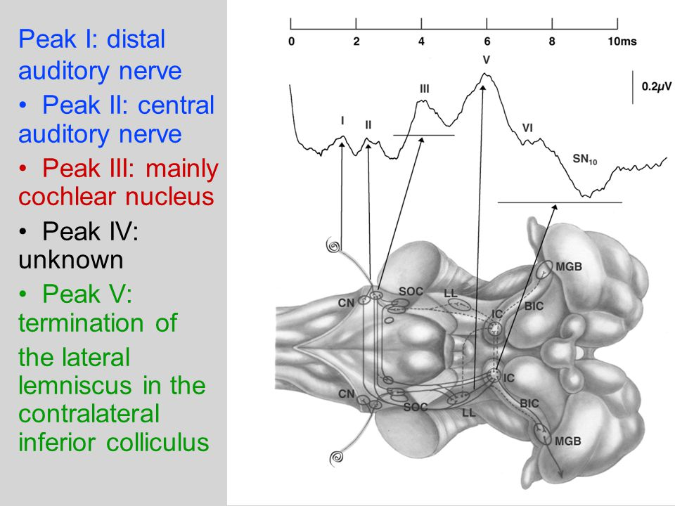 Peak I: distal auditory nerve Peak II: central auditory nerve Peak III: mainly cochlear nucleus Peak IV: unknown Peak V: termination of the lateral lemniscus in the contralateral inferior colliculus