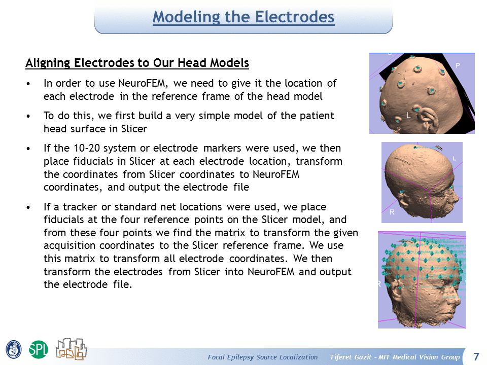 7 Tiferet Gazit – MIT Medical Vision GroupFocal Epilepsy Source Localization Modeling the Electrodes Aligning Electrodes to Our Head Models In order t