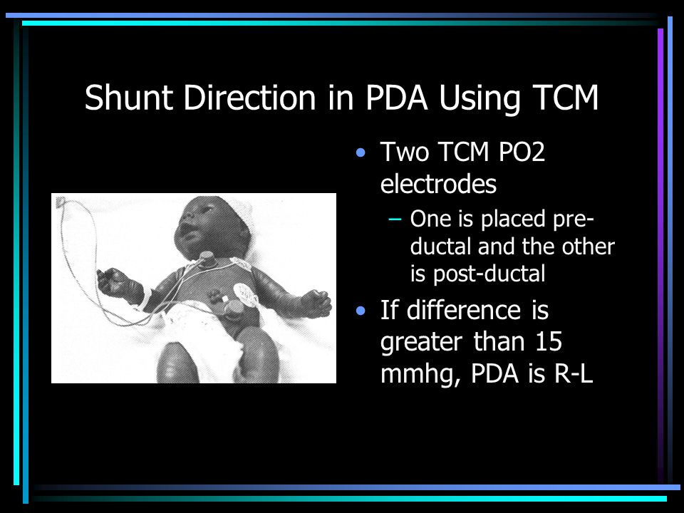 Shunt Direction in PDA Using TCM Two TCM PO2 electrodes –One is placed pre- ductal and the other is post-ductal If difference is greater than 15 mmhg,