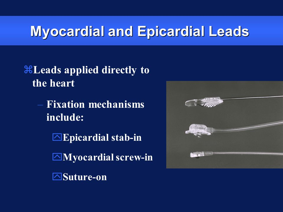 Myocardial and Epicardial Leads zLeads applied directly to the heart –Fixation mechanisms include: yEpicardial stab-in yMyocardial screw-in ySuture-on