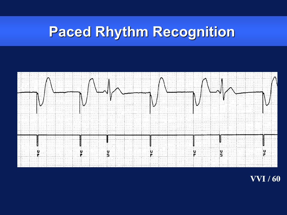 Paced Rhythm Recognition VVI / 60