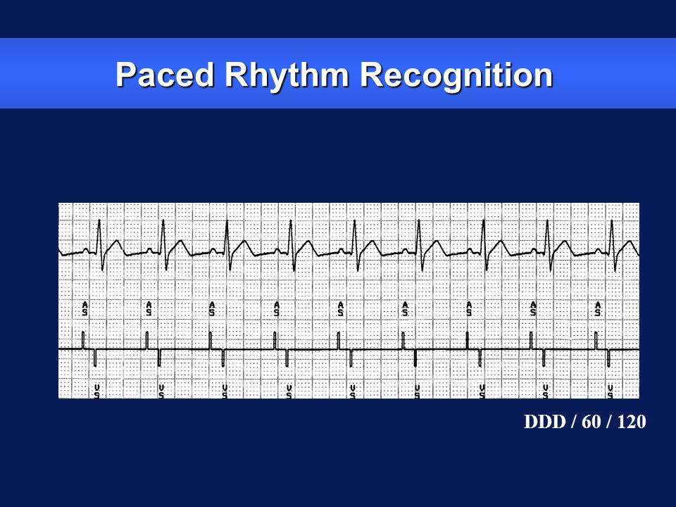Paced Rhythm Recognition DDD / 60 / 120
