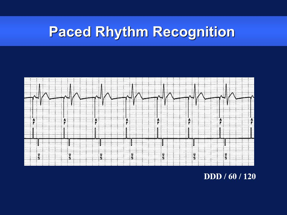 zStimulate cardiac depolarization zSense intrinsic cardiac function zRespond to increased metabolic demand by providing rate responsive pacing zProvide diagnostic information stored by the pacemaker Most Pacemakers Perform Four Functions: