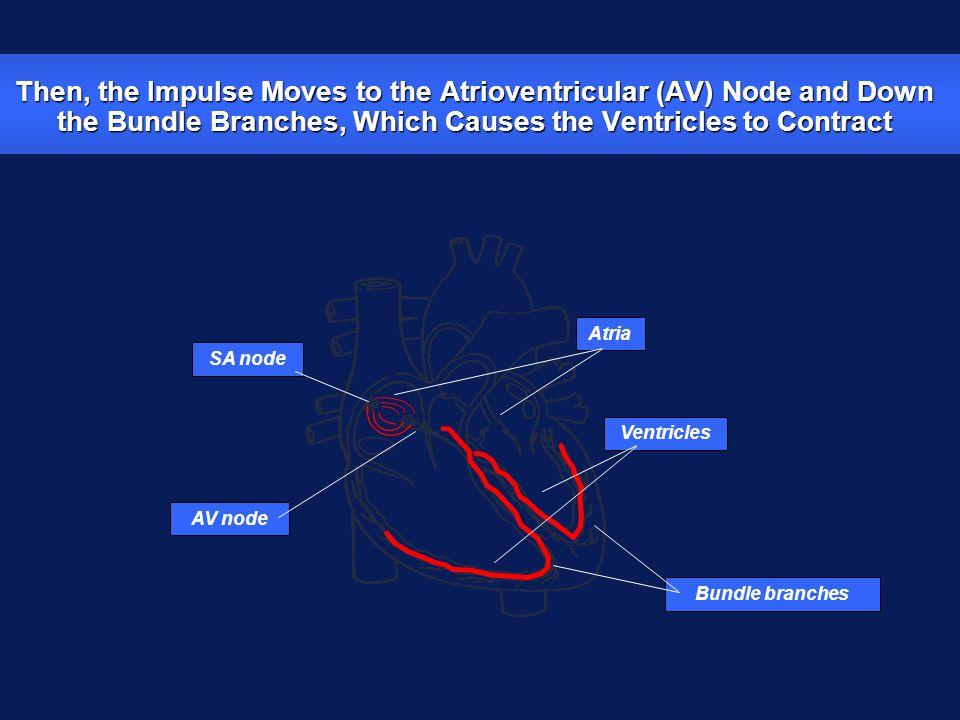 SA node zPrevent impulse generation in the SA node zInhibit impulse conduction AV node Diseased Heart Tissue May: