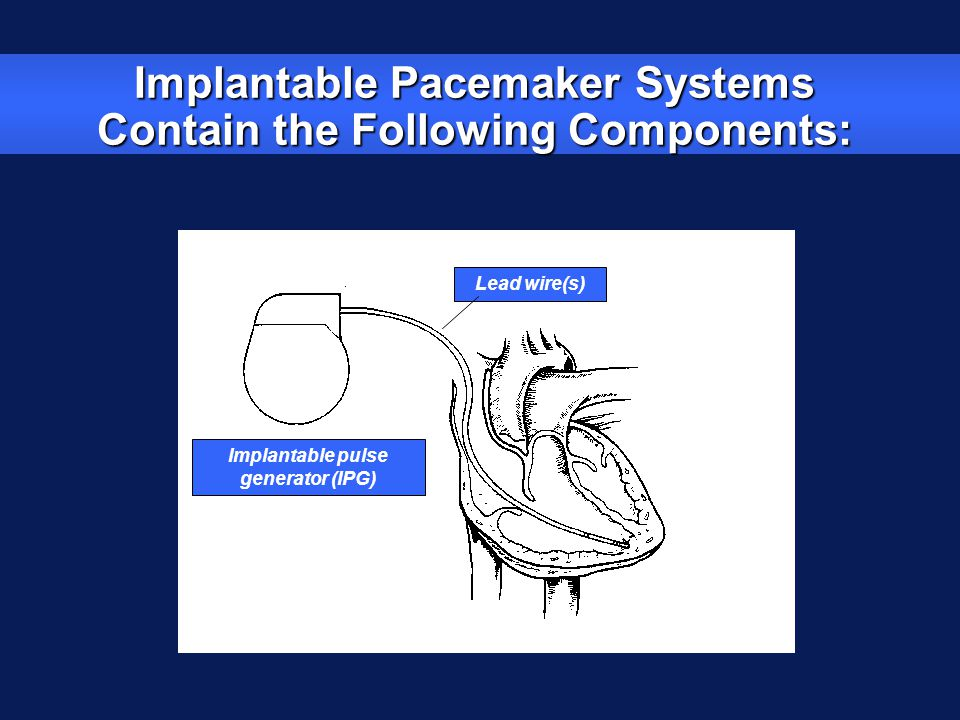 Implantable pulse generator (IPG) Lead wire(s) Implantable Pacemaker Systems Contain the Following Components: