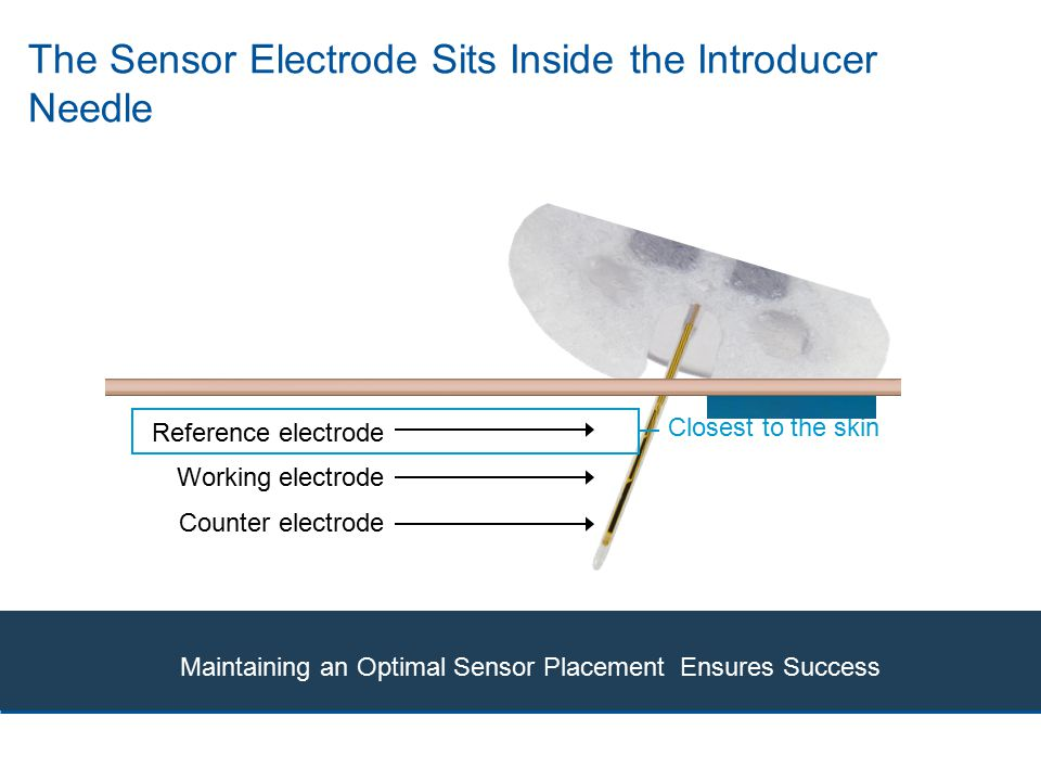 The Sensor Electrode Sits Inside the Introducer Needle Reference electrode Counter electrode Working electrode Maintaining an Optimal Sensor Placement Ensures Success Closest to the skin