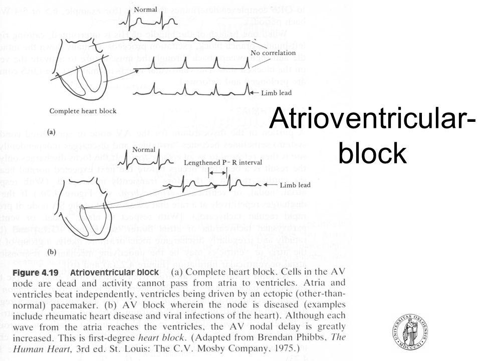 Atrioventricular- block