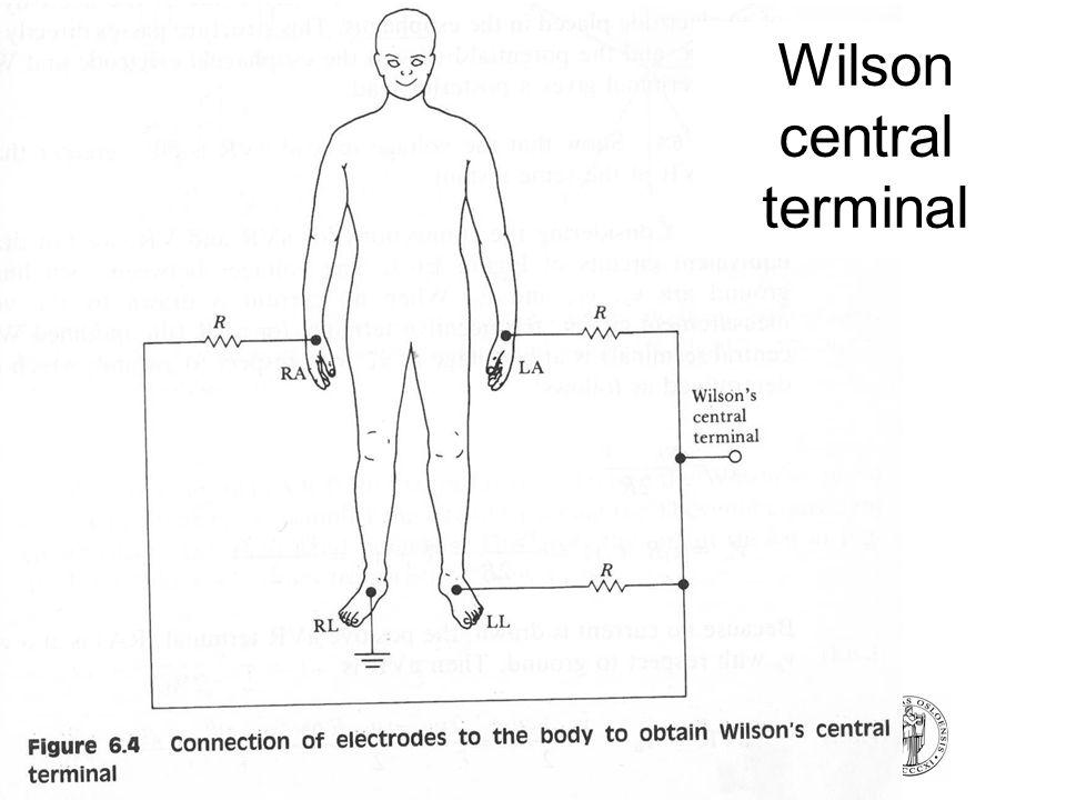 FYS4250Fysisk institutt - Rikshospitalet Wilson central terminal