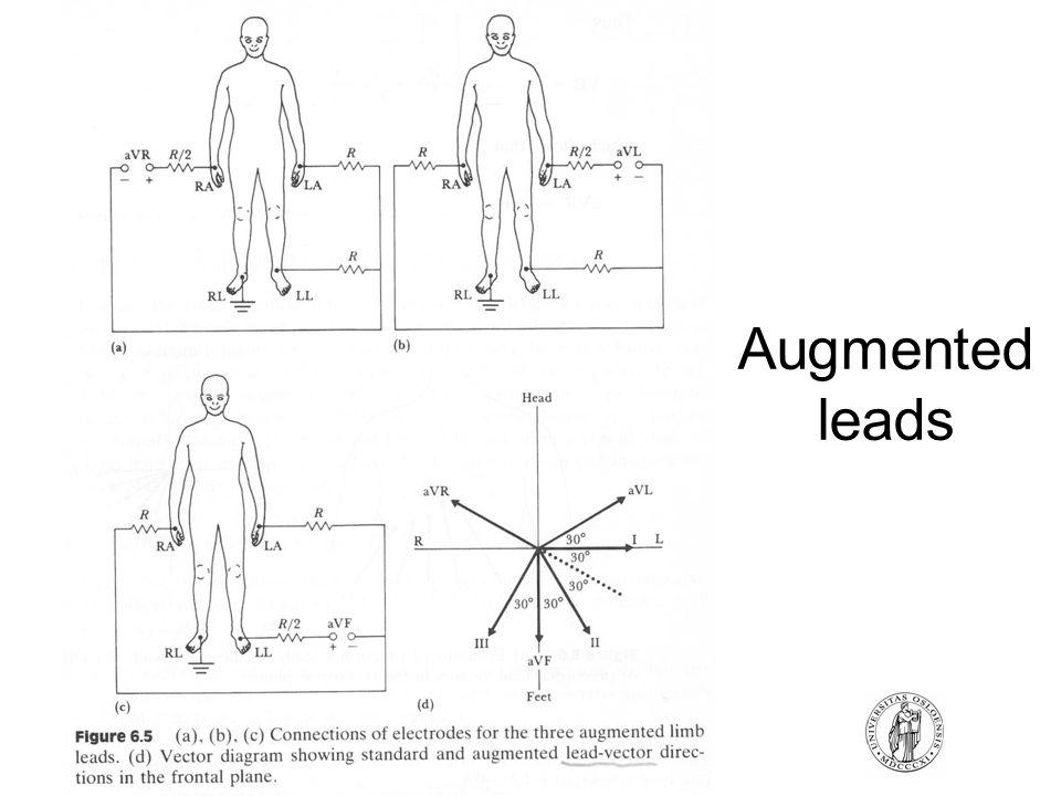 FYS4250Fysisk institutt - Rikshospitalet Augmented leads