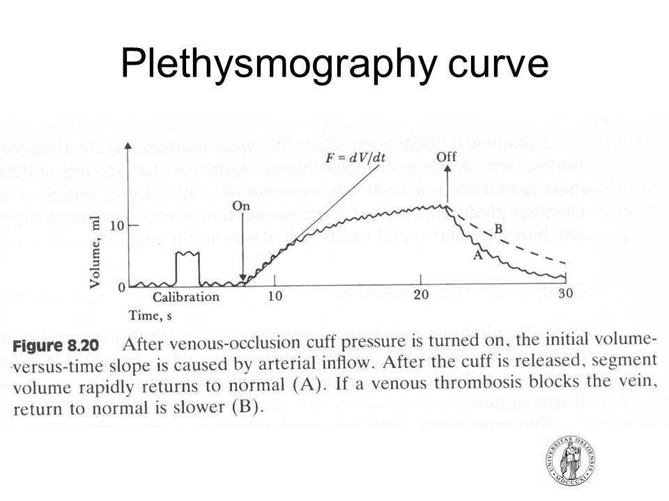 Plethysmography curve